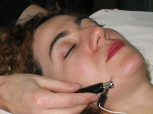 Lifting acupuncture Lyne Forget Laval