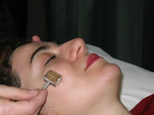 Acupuncture lifting Lyne Forget Laval