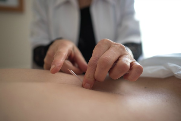 lyne forget acupuncteure laval